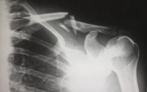 x-ray image of a broken collarbone