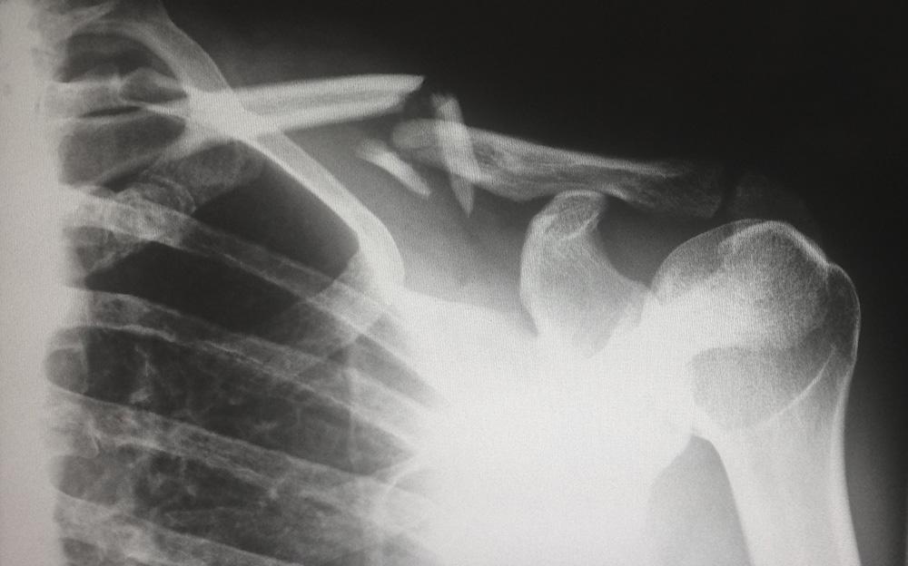 broken-collarbone